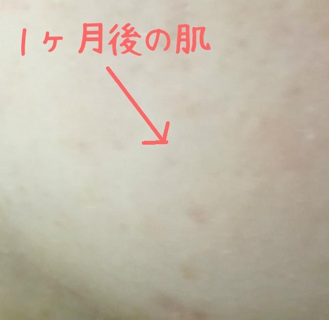 リダーマラボモイストゲルクレンジング1ヶ月後の肌