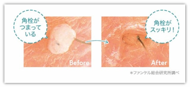 ファンケルマイルドクレンジングオイル毛穴つるすべオイル