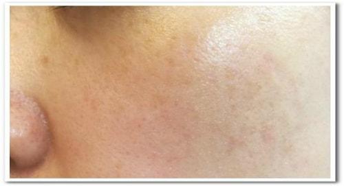 ハレナホットクレンジングジェル使用して2週間後の肌画像