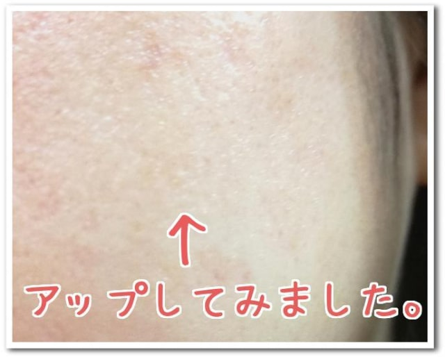 アビエルタパーフェクトモイスチュアセラム使用後肌画像