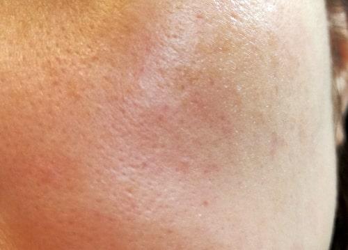 肌のくすみの原因
