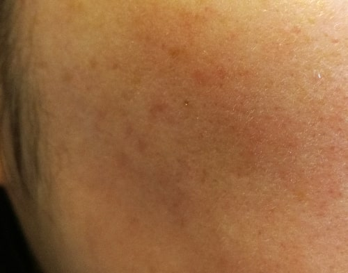 クレジングオイル敏感肌使い方トップ