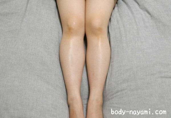 膝の黒ずみを消す
