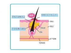 毛穴の開きはニキビの原因