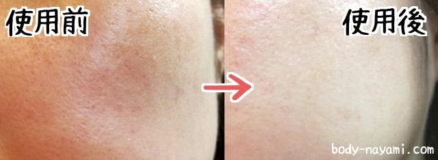 クレンジングオイル肌変化画像
